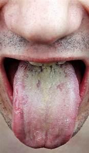 Oral Candidiasis - Net Health Book