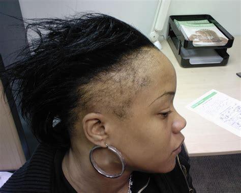 How Mama Dukes Regrew Hair Edges In 5 Months!   Natural