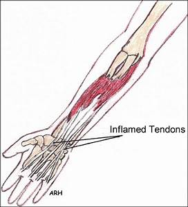 Repetitive Strain Injuries  Rsi  Carpal Tunnel Syndrome