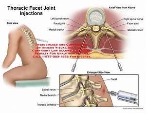 Amicus Illustration Of Amicus Surgery Thoracic Facet Joint