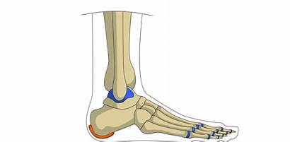 Heel Injury Bruised Muscle Pull Comment
