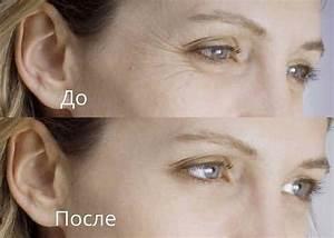 Ци-клим ботоэффект крем от мимических морщин