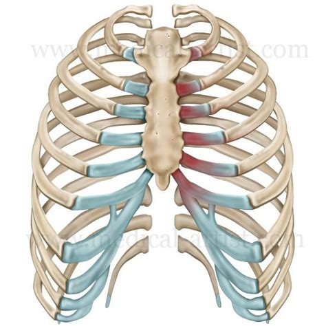 Costo Chondritis  Human Rib Cage  Costochondritis. Blue Shield Of California Hmo. Best Insurance Management System. Drive In Pallet Racking Kia Dealerships In Ri. Best Rates On Homeowners Insurance. Best Air Travel Credit Card Dish San Antonio. Killeen Tx Electric Companies. Music Therapy Degree Requirements. Dish Network Promotional Code