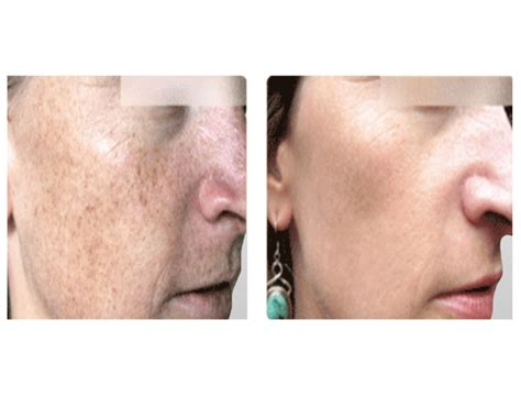 Sciton Laser Skin Resurfacing In Miami  Laser Treatments. Cabinet Manufacturing Software. Rn To Bachelor Of Science In Nursing. Spectrum Health Employee Benefits. Paris Regional Medical Center Paris Tx. Water Damage Marietta Ga Ghumti Ma Na Aau Hai. Free Medical Assistant Programs In Nyc. Document Management Market Size. Free Accounting Spreadsheet Templates