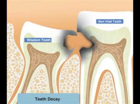 Diagram Of Right Rear Molar by Wisdom Teeth Infection Or Decay Why Third Molars