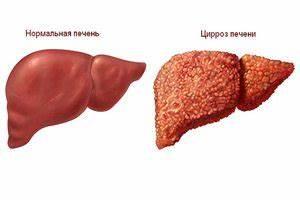 Препараты для лечения цирроз печени