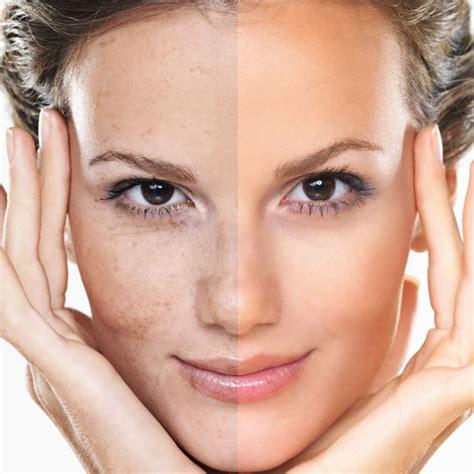 viva anti wrinkle laser skin rejuvenation adelaide laser skin vein clniic
