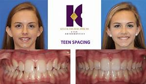 Invisalign Before & After - Childers Orthodontics ...