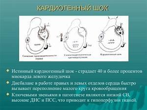 Всд гипертония и тахикардия