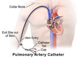 ablation chambre implantable pulmonary artery catheter