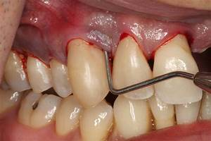 how to cure tooth infection without root canal