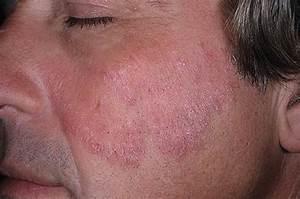 Лечение псориаза серой отзывы