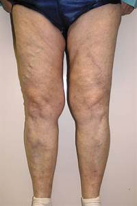 Vascular Viewpoint: Improving superficial thrombophlebitis ...  Superficial