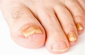 Мазь от грибка ногтей флуцинар