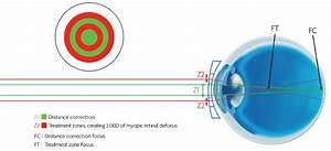 Coopervision MiSight Contact Lenses: A Breakthrough In ...