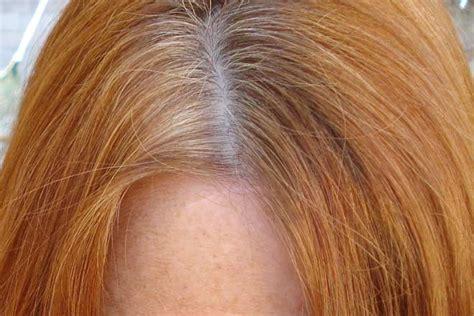 Psoriasis skin shedding