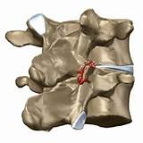 Медикаментозное лечение грудного остеохондроза у женщин лечение