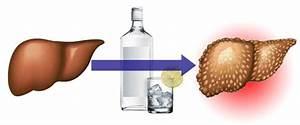 Восстановление печени после отказа от алкоголя
