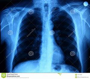 Human Chest Stock Photo  Image Of Fracture  Healthcare
