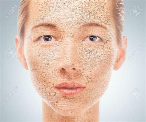 Dry Skin Brazil Pdf Ppt Case Reports Symptoms