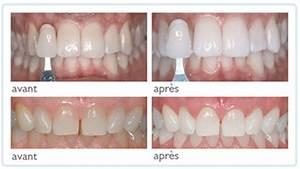Quel Anti Inflammatoire Pour Une Douleur Dentaire : centre dentaire tajmouati dentiste maroc annuaire ~ Medecine-chirurgie-esthetiques.com Avis de Voitures