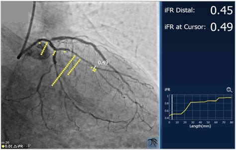 physiology guided management  serial coronary artery