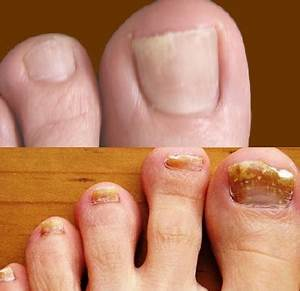 Средство от грибка кожи и ногтей на руке