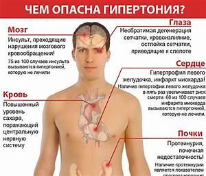 Лечить гипертонию в харькове