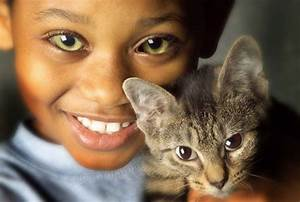 people with cat eye syndrome - Google Search ...