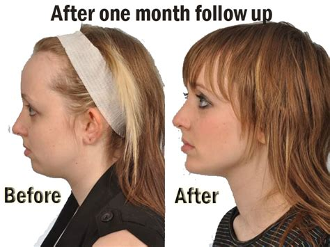Pin on Fillers