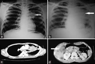 cat scan with contrast chest ct scan with contrast