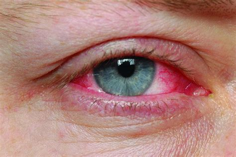 Watch Out For Pinkeye During Cold & Flu Season