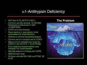 Overview of Alpha-1 Antitrypsin Deficiency - Newly ...