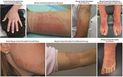 Jcm Free Full Text Diagnosis Of Atopic Dermatitis