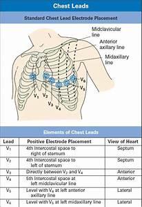 Ecg Lead Placement Guide Diagram