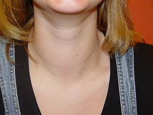 Goiter Symptoms  U00ab Ask The Doctor And Be Healthy