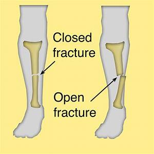 A closed fracture does not