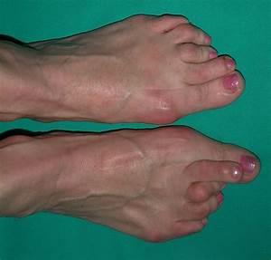 hammer toes | JeffreySterlingMD.com
