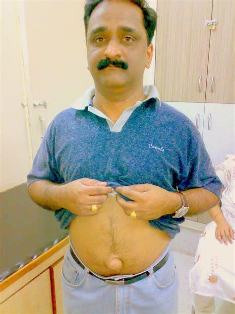 Atrial Fibrillation Stomach Gas Digestive Tract Autos Post