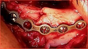 Reconstruction Of The Left Infraorbital Rim With Orbital Titanium Plate