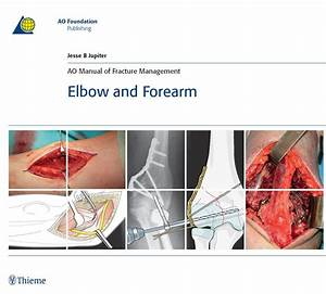 Ao Manual Of Fracture Management Pdf