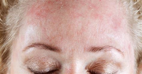 Tips To Prevent Seborrheic Dermatitis