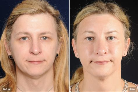 jaw reduction  botox    pass