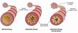 Asthma Related Keywords - Asthma Long Tail Keywords ...