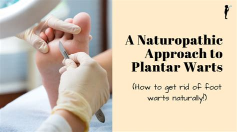 how to get rid of planters wart a naturopathic approach to plantar warts getting rid of