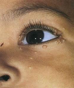 Бородавки у детей лечение и удаление