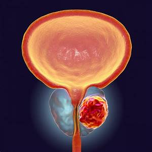 Hormone Therapy Can Make Prostate Cancer Worse  Study Finds