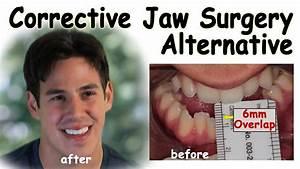 Corrective Jaw Surgery Alternative - Underbite Correction ...