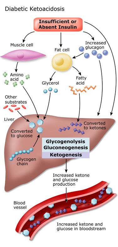 Ketoacidosis Causes, Symptoms, Treatment Ketoacidosis. Chef John Folse Culinary Institute. Free Bulk Mailer Software Long Term Care Aarp. School For Automotive Engineering. Cameron General Contractors Ipad Garage Band. Car Dealers In Santa Fe Nm Los Angeles Crimes. Des Moines Car Insurance State Farm Golden Co. Apartment Movers Houston Roofing And Building. Meadowbrook Golf Course Nc Wpp Media Agencies