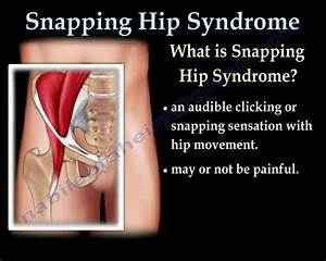 Snapping Hip Syndrome - Everything You Need To Know